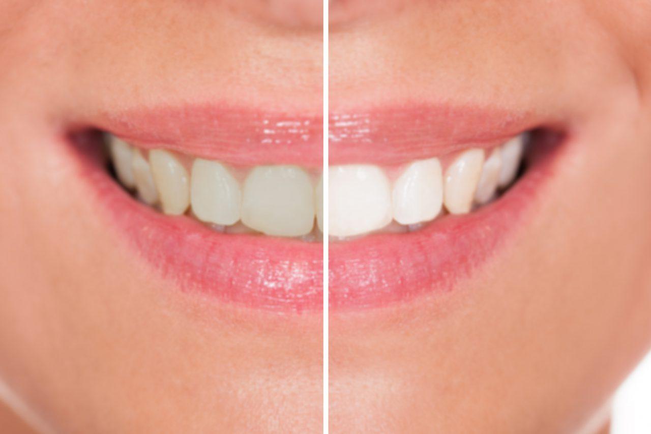 Yellow Teeth, Gallstones and Restless Legs