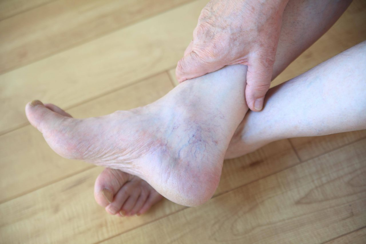 Expanding Feet, C. Difficile and Varicose Veins