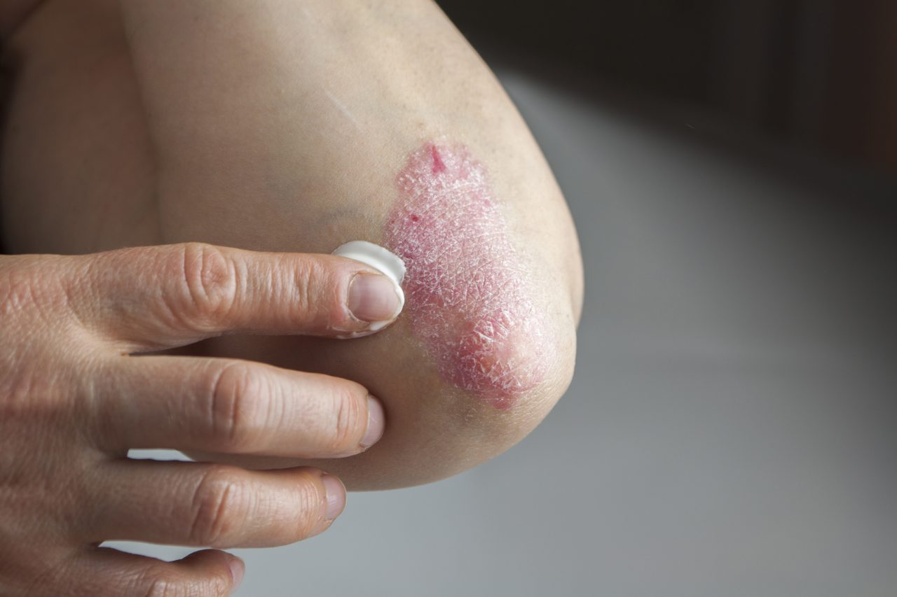 Is There a Cure for Psoriasis?