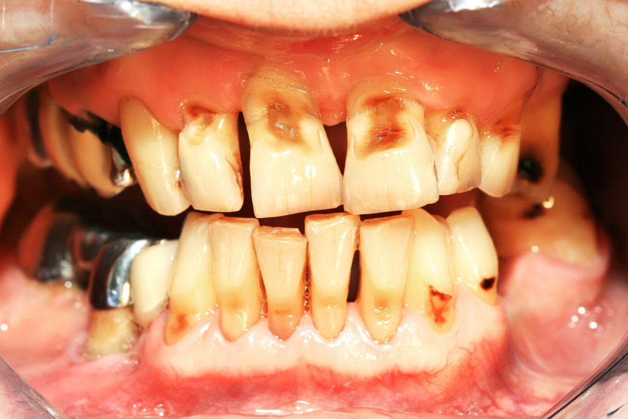 Tooth Decay, Poison and Headaches
