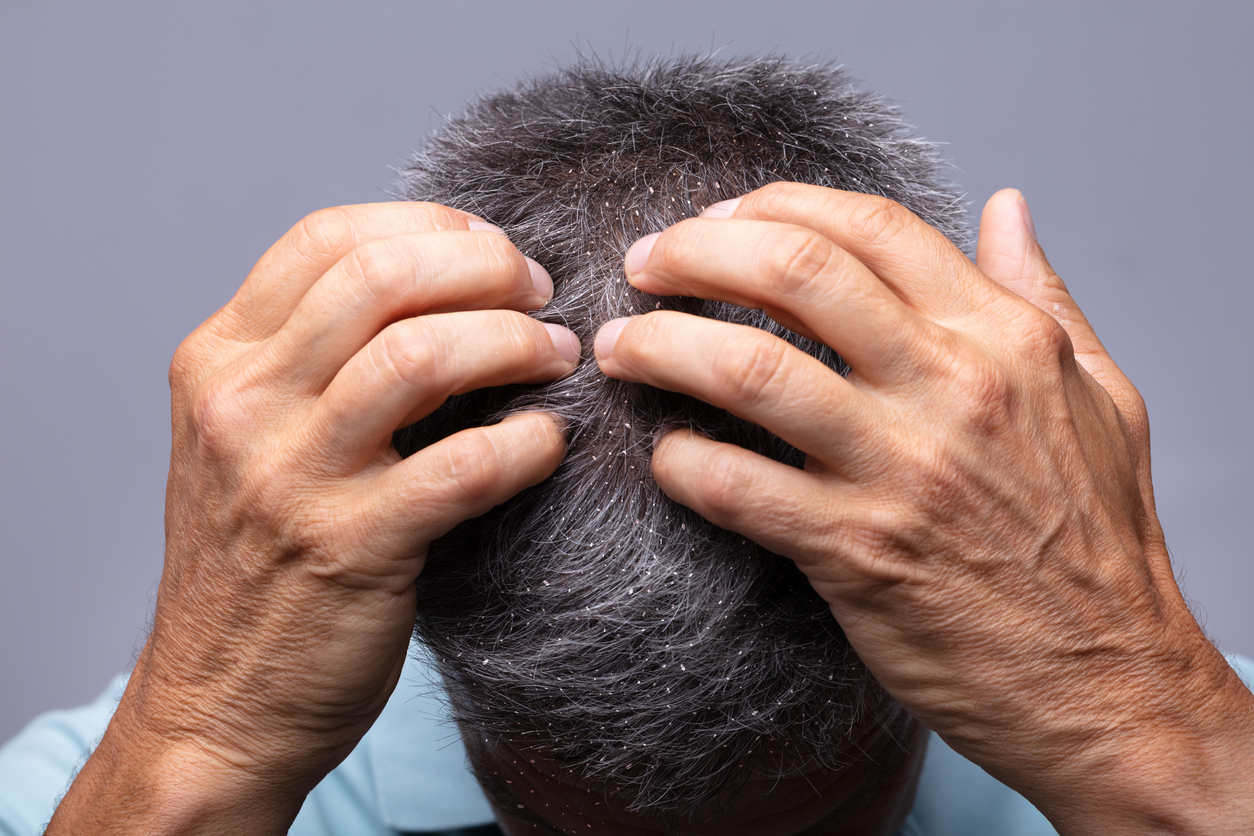 Dandruff and Aging