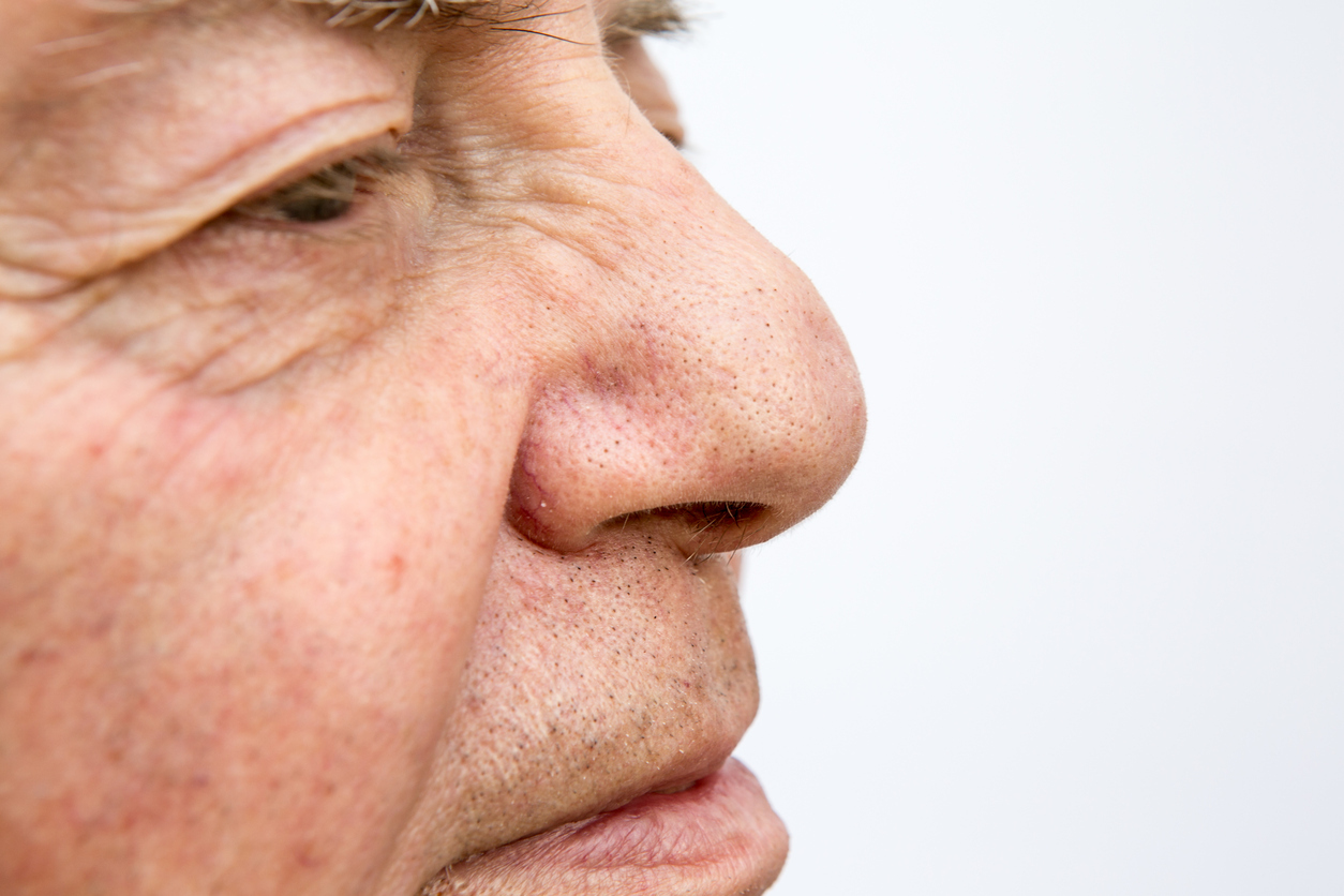 Origins of 'Old-People Smell'