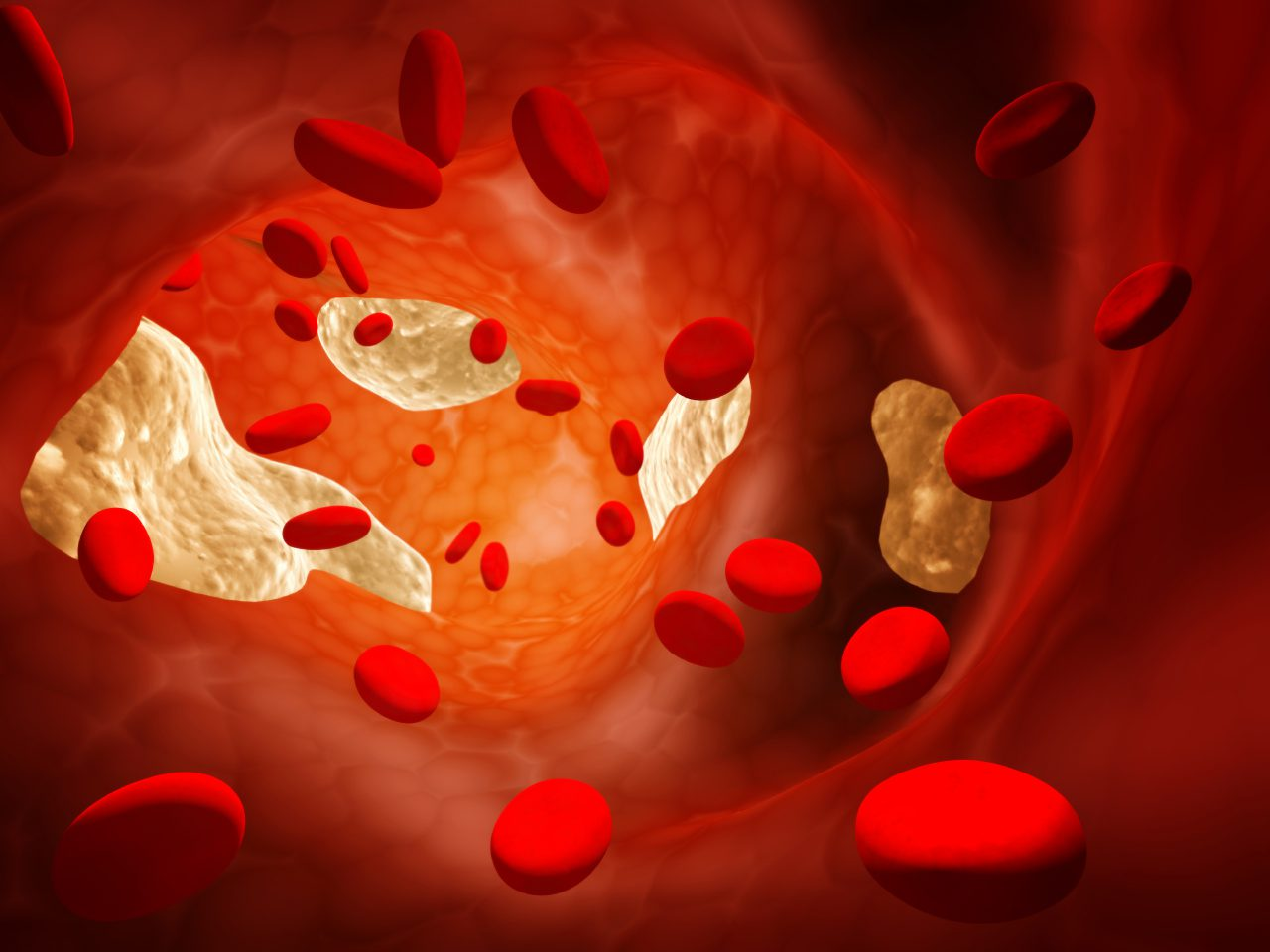 The Truth About Statins: Part 2