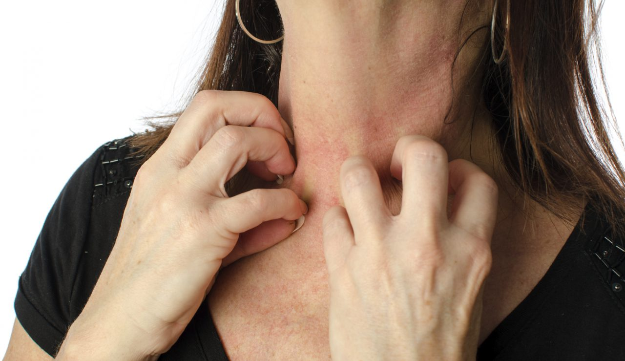 What Causes Contact Dermatitis?